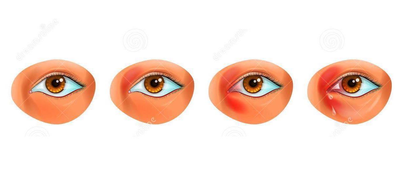 Bệnh viêm mắt là gì? Nguyên nhân và cách phòng ngừa, điều trị